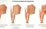 Как подобрать класс компрессии колготок: при варикозе, беременности